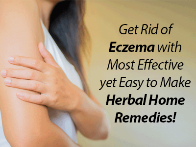 Skin care, Supplement for Eczema care, how to cure itchy skin, home remedies for eczema, best supplements for eczema