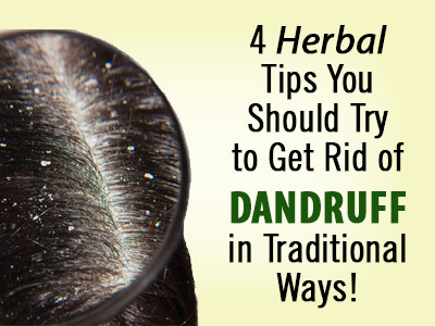 home remedies for dandruff care, Flaky scalp, Dandruff care, home remedies for dandruff, Hair care, Hair supplement