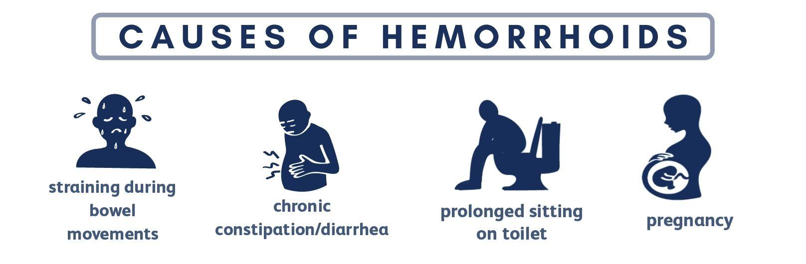 causes of hemorrhoids